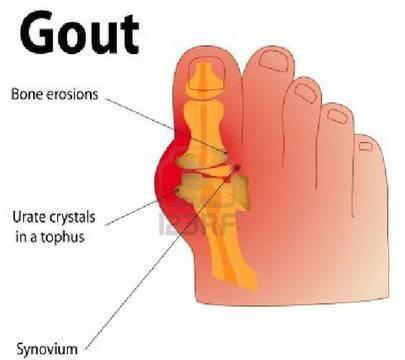 Диагностика на подагрозния артрит